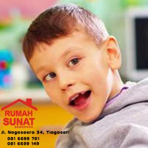 Metode Khitan/sunat untuk Anak Berkebutuhan khusus/autis